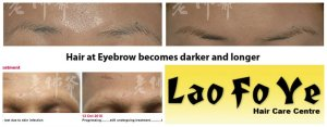 laofoye eyebrow growth